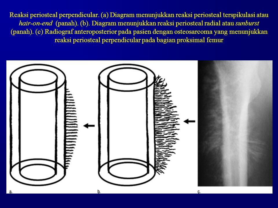 Reaksi periosteal perpendicular. (a) Diagram menunjukkan reaksi periosteal terspikulasi atau hair-on-end (panah). (b). Diagram menunjukkan reaksi peri