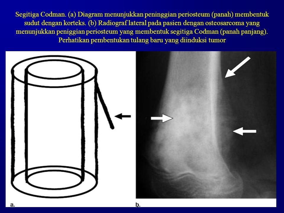 Segitiga Codman. (a) Diagram menunjukkan peninggian periosteum (panah) membentuk sudut dengan korteks. (b) Radiograf lateral pada pasien dengan osteos