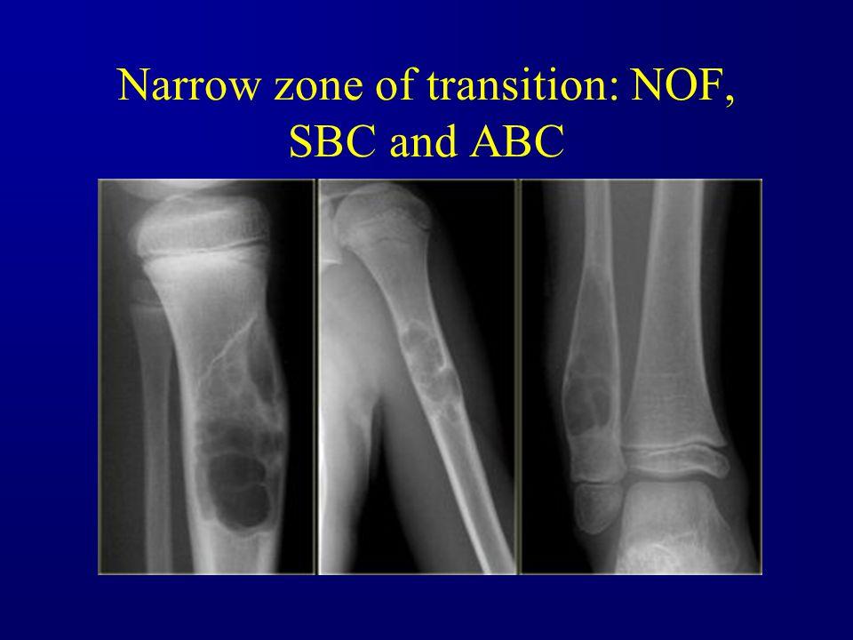 Narrow zone of transition: NOF, SBC and ABC