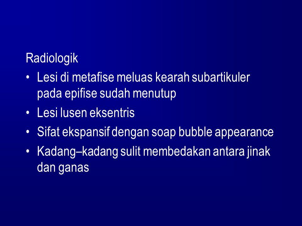 Radiologik Lesi di metafise meluas kearah subartikuler pada epifise sudah menutup Lesi lusen eksentris Sifat ekspansif dengan soap bubble appearance K