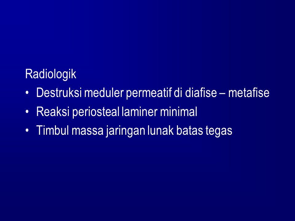 Radiologik Destruksi meduler permeatif di diafise – metafise Reaksi periosteal laminer minimal Timbul massa jaringan lunak batas tegas
