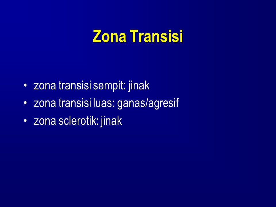 Zona Transisi zona transisi sempit: jinak zona transisi luas: ganas/agresif zona sclerotik: jinak