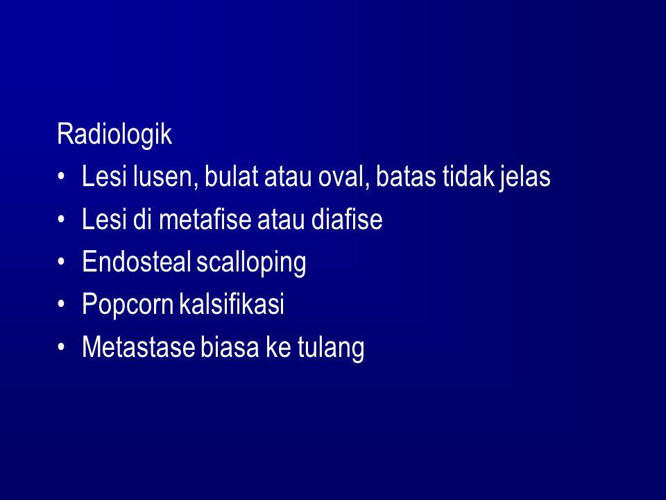 Radiologik Lesi lusen, bulat atau oval, batas tidak jelas Lesi di metafise atau diafise Endosteal scalloping Popcorn kalsifikasi Metastase biasa ke tu