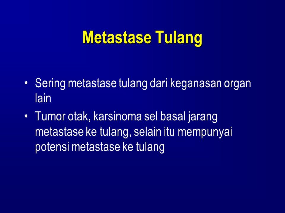 Metastase Tulang Sering metastase tulang dari keganasan organ lain Tumor otak, karsinoma sel basal jarang metastase ke tulang, selain itu mempunyai po