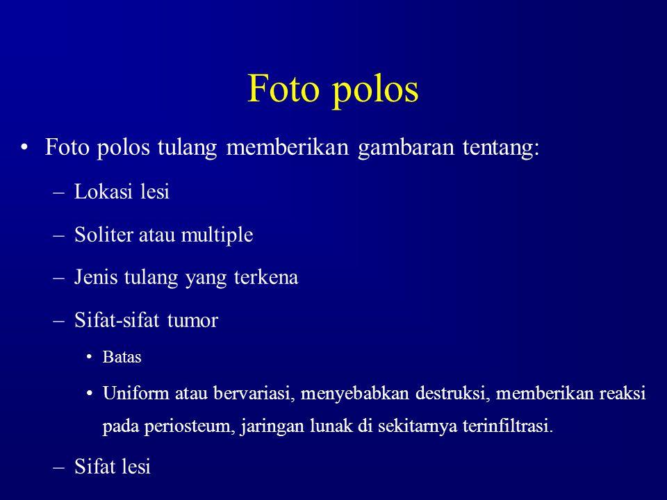 Foto polos Foto polos tulang memberikan gambaran tentang: –Lokasi lesi –Soliter atau multiple –Jenis tulang yang terkena –Sifat-sifat tumor Batas Unif