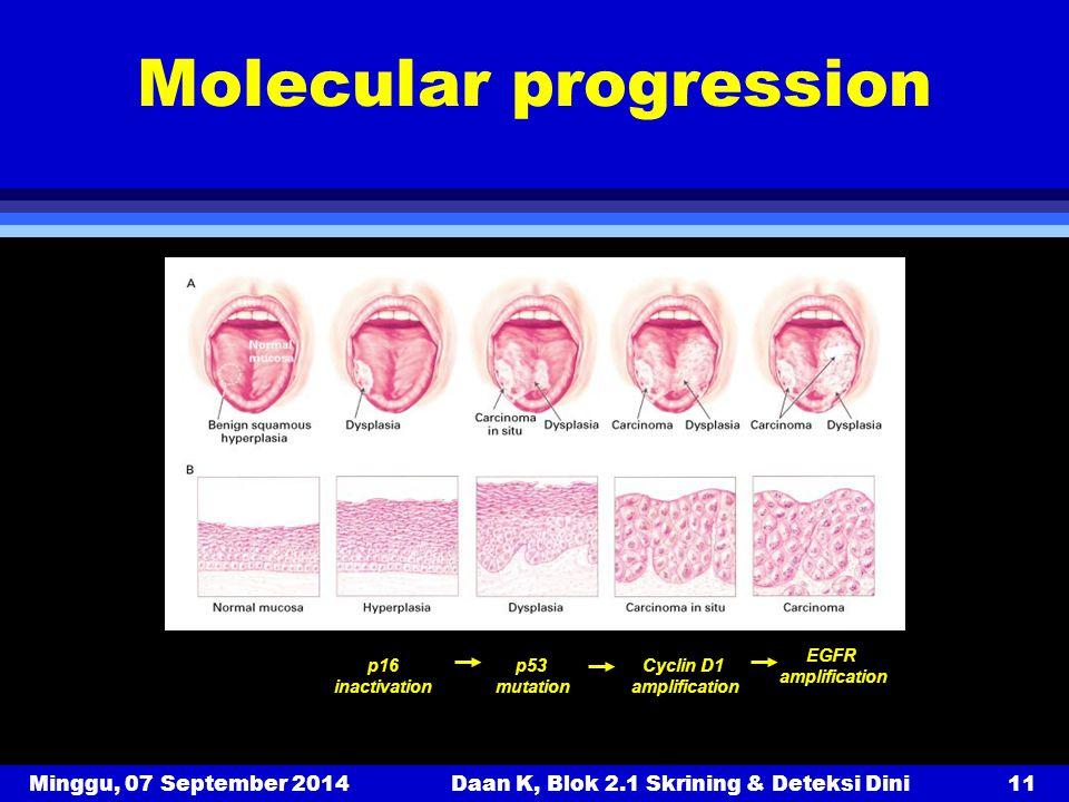 Minggu, 07 September 2014Daan K, Blok 2.1 Skrining & Deteksi Dini11 Molecular progression Forastiere et al. (2001) NEJM 345, 1890-1900. p16 inactivati