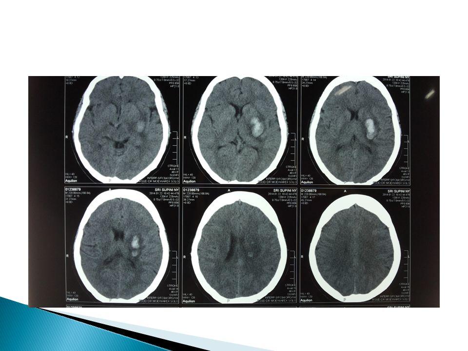 ANAMNESIS  Kelemahan anggota gerak kanan mendadak  Nyeri kepala  Mulut merot ke kiri  Kesemutan anggota gerak kanan  Pelo  Riwayat hipertensi (+) tidak terkontrol.