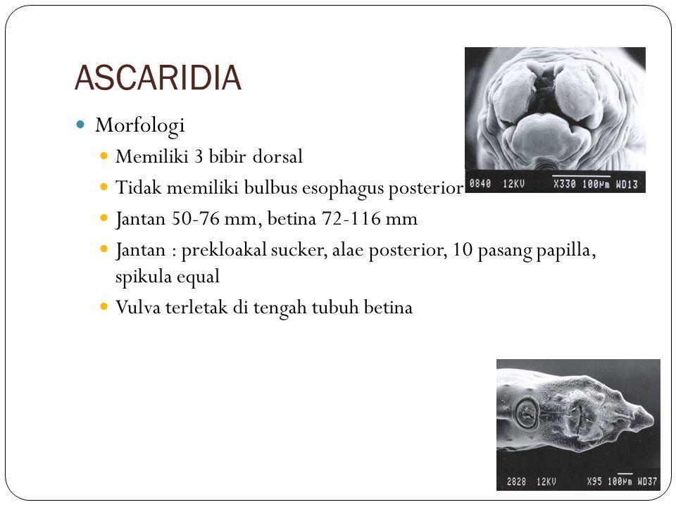 ASCARIDIA Morfologi Memiliki 3 bibir dorsal Tidak memiliki bulbus esophagus posterior Jantan 50-76 mm, betina 72-116 mm Jantan : prekloakal sucker, al