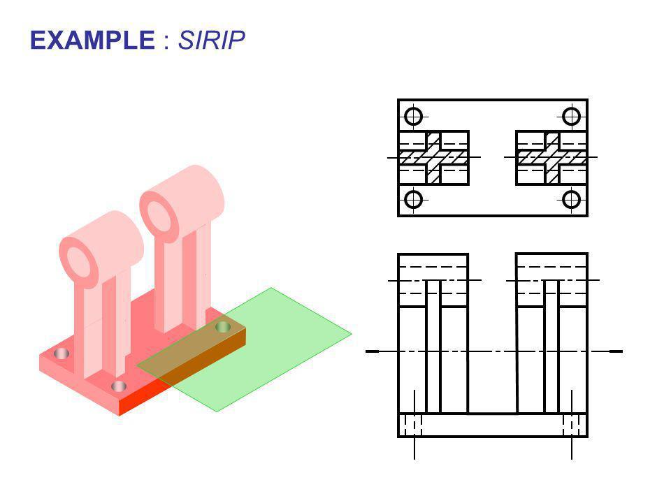 EXAMPLE : SIRIP