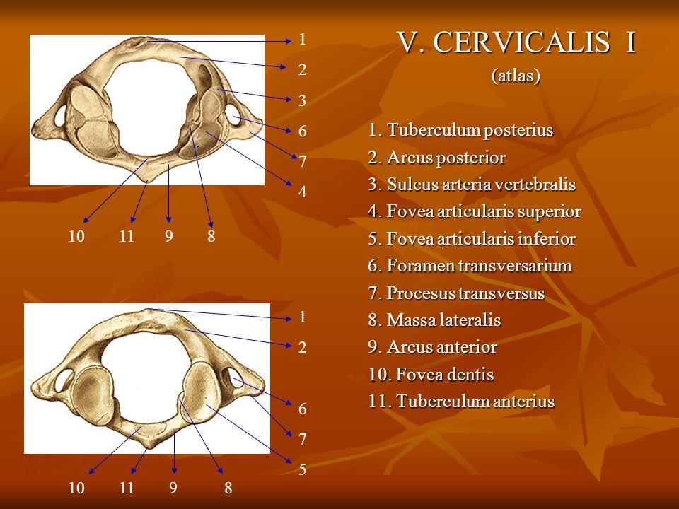 V. CERVICALIS I (atlas) 1. Tuberculum posterius 2. Arcus posterior 3. Sulcus arteria vertebralis 4. Fovea articularis superior 5. Fovea articularis in