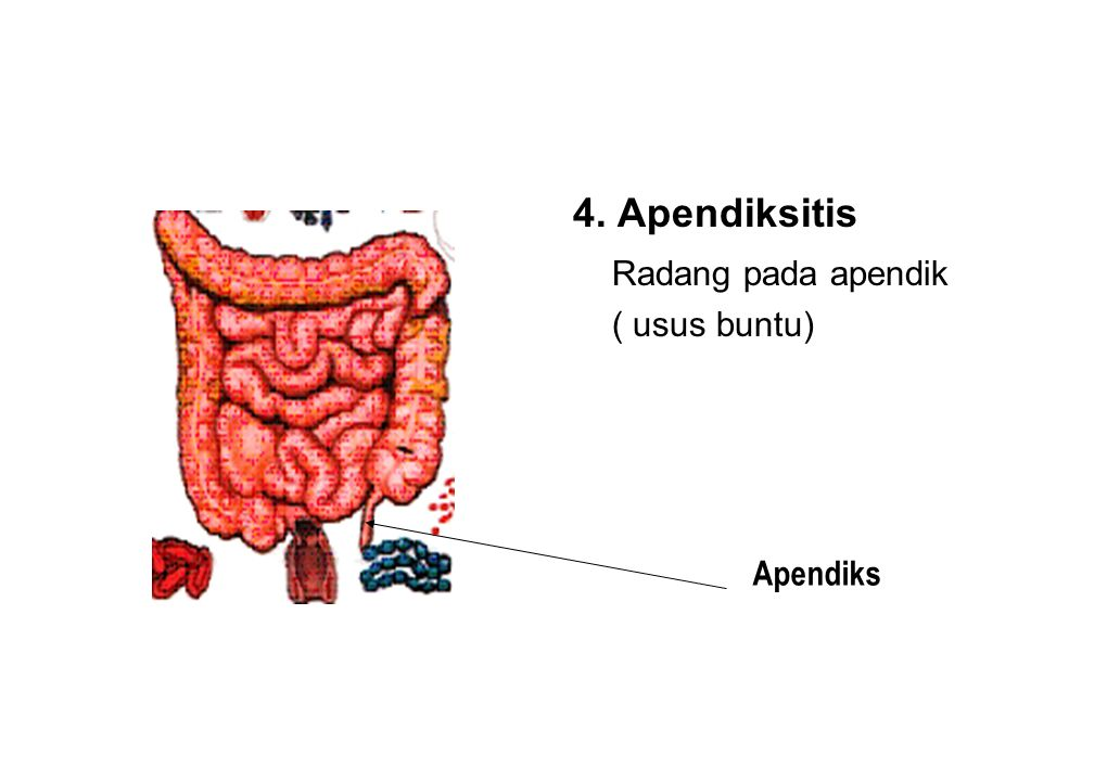3. Kolik Adalah rasa sakit pada saluran pencernaan akibat penyumbatan saluran pencernaan.