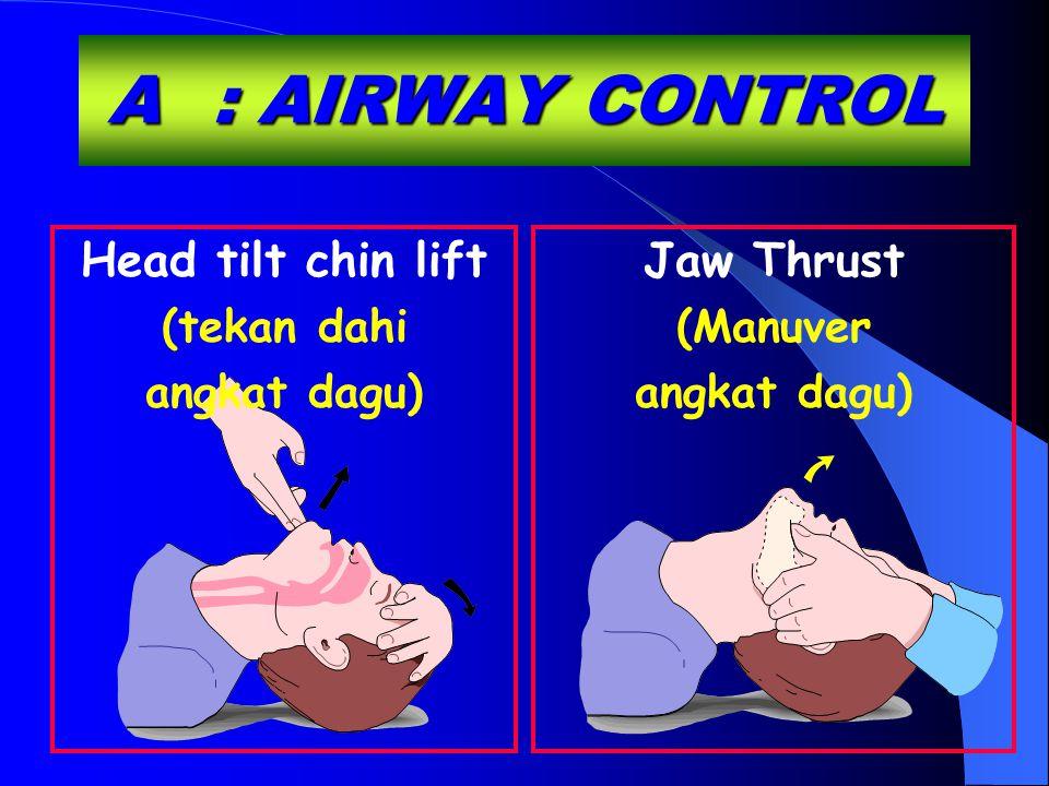 Head tilt chin lift (tekan dahi angkat dagu) A: AIRWAY CONTROL Jaw Thrust (Manuver angkat dagu)