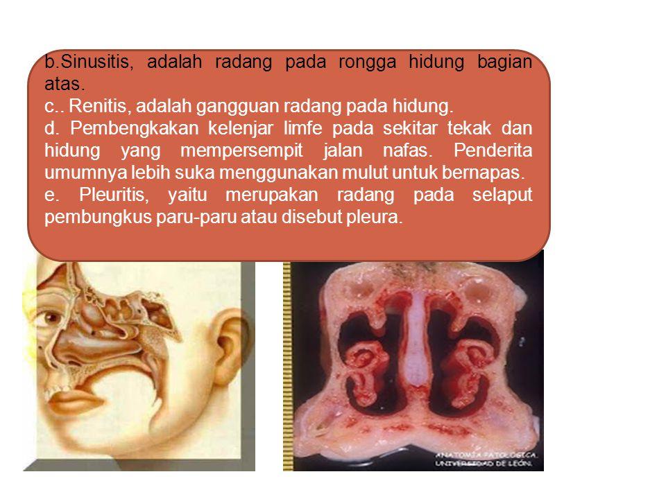 1. Kelainan/Gangguan/Penyakit Saluran Pernapasan a.Penyempitan saluran pernafasan akibat asma atau bronkitis. Bronkis disebabkan oleh bronkus yang dik