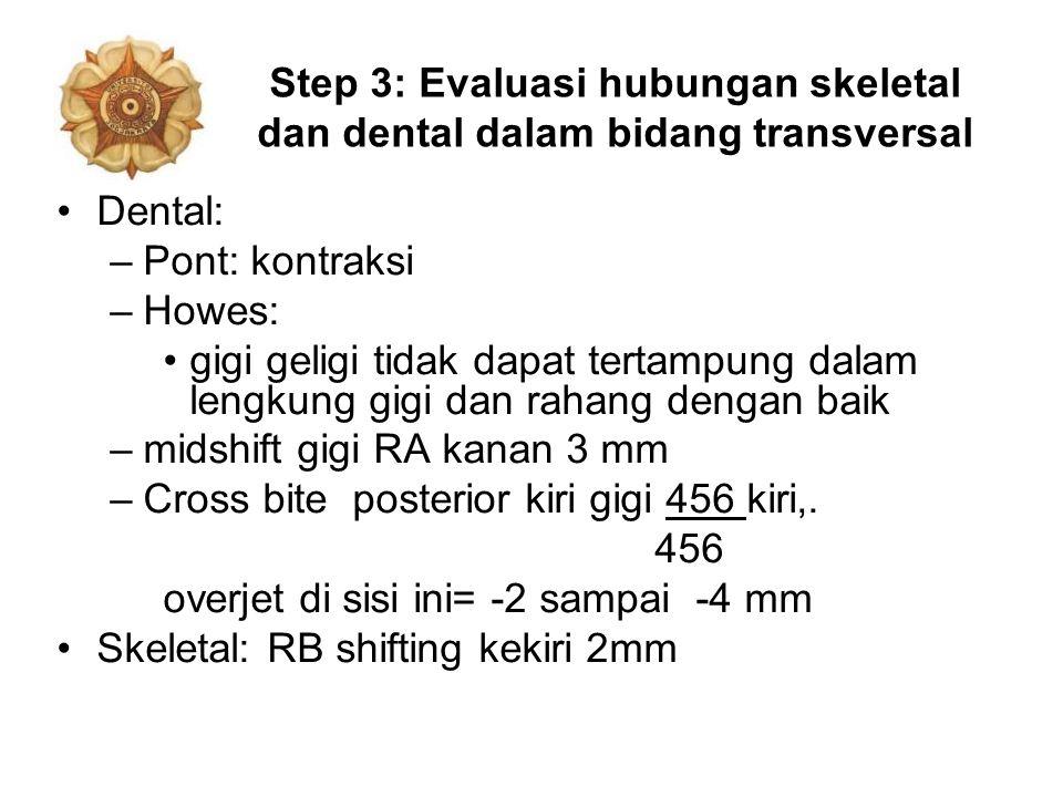 Step 3: Evaluasi hubungan skeletal dan dental dalam bidang transversal Dental: –Pont: kontraksi –Howes: gigi geligi tidak dapat tertampung dalam lengk