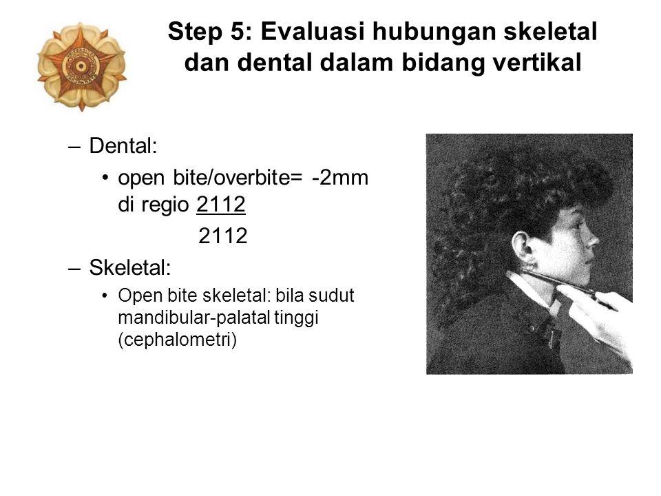 Step 5: Evaluasi hubungan skeletal dan dental dalam bidang vertikal –Dental: open bite/overbite= -2mm di regio 2112 2112 –Skeletal: Open bite skeletal