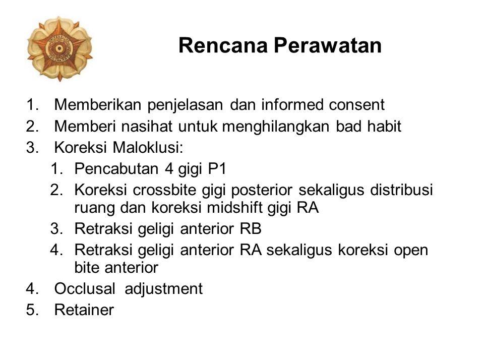 Rencana Perawatan 1.Memberikan penjelasan dan informed consent 2.Memberi nasihat untuk menghilangkan bad habit 3.Koreksi Maloklusi: 1.Pencabutan 4 gig