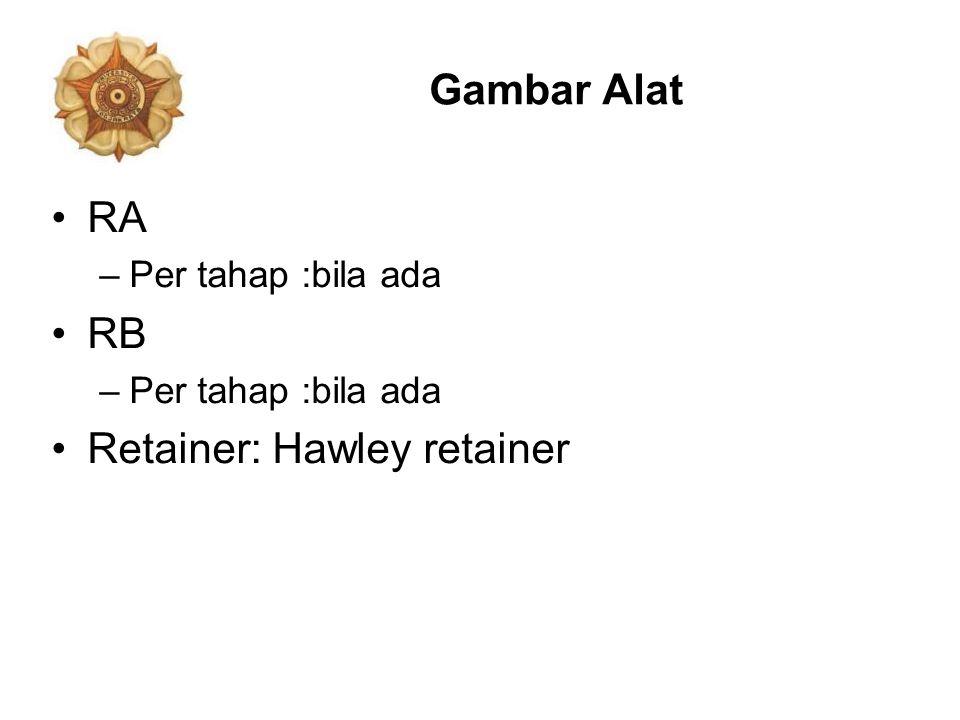 Gambar Alat RA –Per tahap :bila ada RB –Per tahap :bila ada Retainer: Hawley retainer
