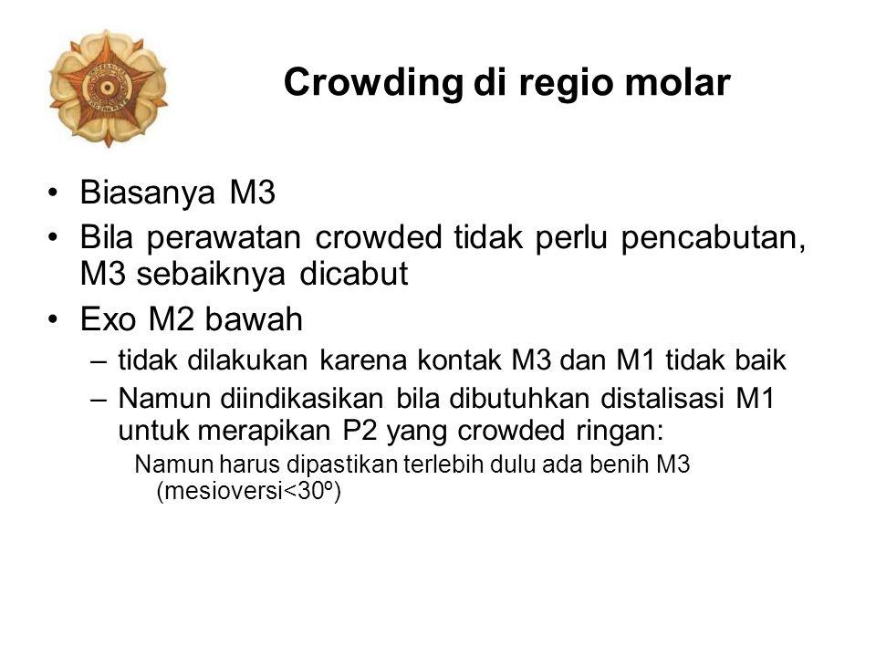 Crowding di regio molar Biasanya M3 Bila perawatan crowded tidak perlu pencabutan, M3 sebaiknya dicabut Exo M2 bawah –tidak dilakukan karena kontak M3