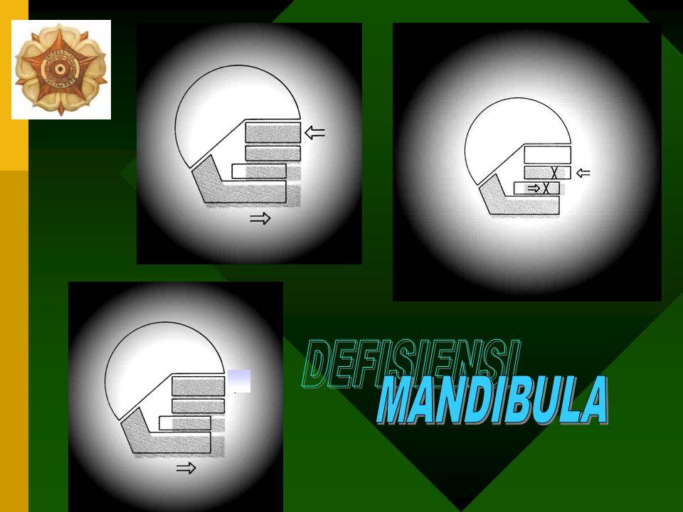 TP KL II dg DEFISIENSI MANDIBULA Preadolesen modifikasi pertumbuhan RB beserta dental Adolesen/adult dg. Moderate case 1.Kamuflase: extraksi P, close