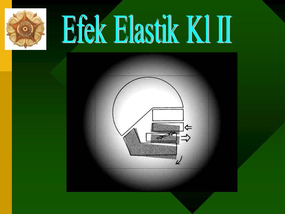 Kl II skeletal + defisiensi mandibula AKTIVATOR  2 efek: –Efek elastik kl II: menggerakkan seluruh gigi bawah ke depan dan atas ke belakang –Efek Hea