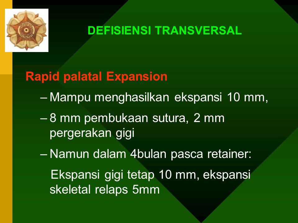 DEFISIENSI TRANSVERSAL Kubah palatum sempit Perawatan: 1.Rapid palatal Expansion:0,5-1 mm/ hari 2.Slow expansion: 1mm/minggu Retensi 3-4 bulan