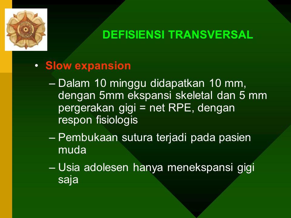 DEFISIENSI TRANSVERSAL Rapid palatal Expansion –Mampu menghasilkan ekspansi 10 mm, –8 mm pembukaan sutura, 2 mm pergerakan gigi –Namun dalam 4bulan pa
