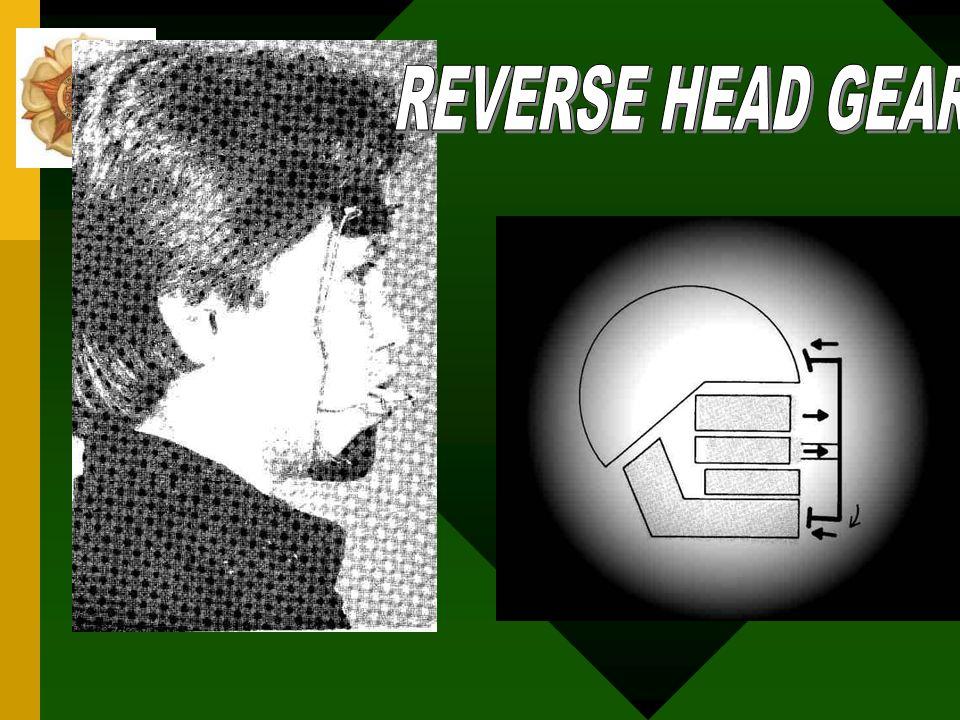 DEFISIENSI VERTICOHORISONTAL Diperlukan reverse head gear /face mask untuk menstimulasi pertumbuhan sutura ke depan Mempunyai efek resiprokal dengan b