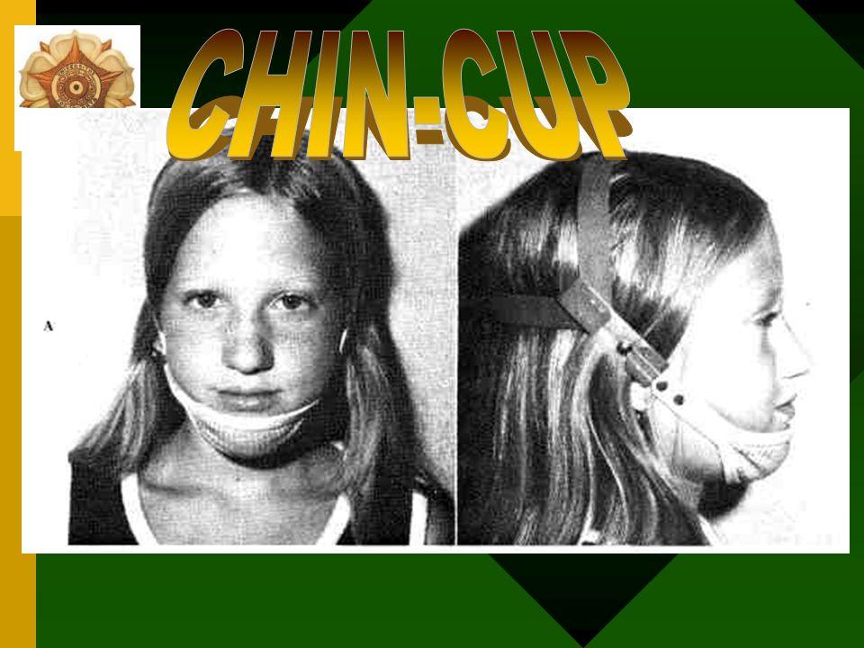 Chin cup sebagai alat fungsional Alat fungsional = cara kerja chin cup kedua Tujuan : bite opening mandibula yang memfasilitasi pertumbuhan gigi Tidak