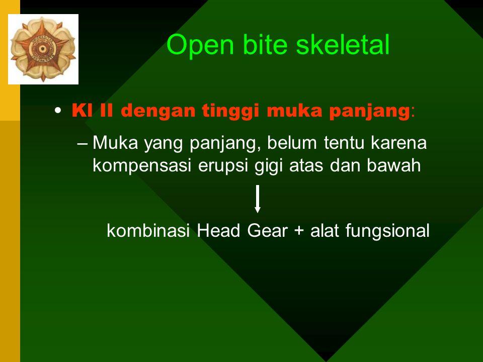 KELAINAN VERTIKAL OPEN BITE SKELETAL Pertumbuhan vertikal maxilla yang berlebihan: lebih banyak posterior dari anterior dibarengi dengan rotasi mandib