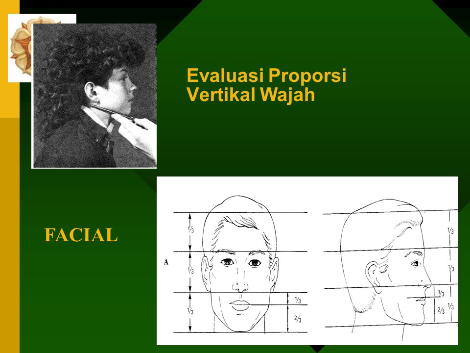 FACIAL Sagital/anteroposterior Gigi dikatakan protrusif bila : a. Bibir prominen menonjol keluar b. Bibir terpisah saat rest posisi kurang lebih 3 – 4