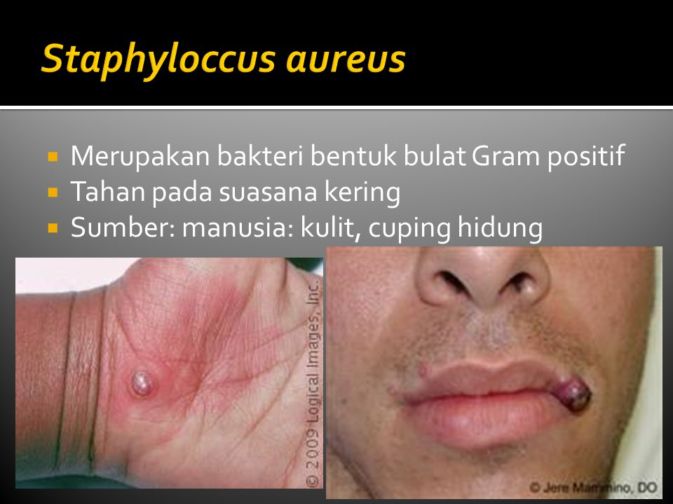  Merupakan bakteri bentuk bulat Gram positif  Tahan pada suasana kering  Sumber: manusia: kulit, cuping hidung