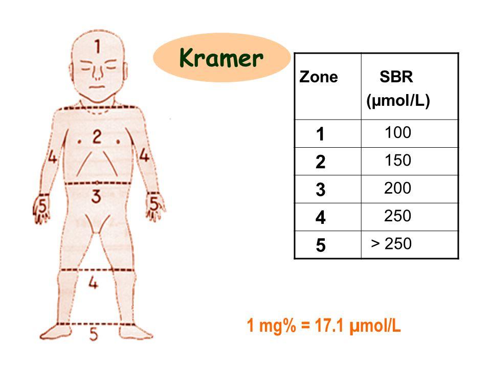 Zone SBR (µmol/L) 1 100 2 150 3 200 4 250 5 > 250 Kramer 1 mg% = 17.1 µmol/L