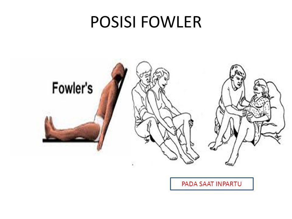 POSISI FOWLER PADA SAAT INPARTU