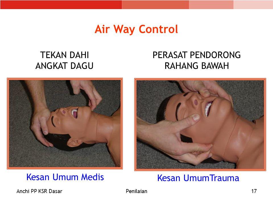 Anchi PP KSR DasarPenilaian17 Air Way Control TEKAN DAHI ANGKAT DAGU PERASAT PENDORONG RAHANG BAWAH Kesan Umum Medis Kesan UmumTrauma