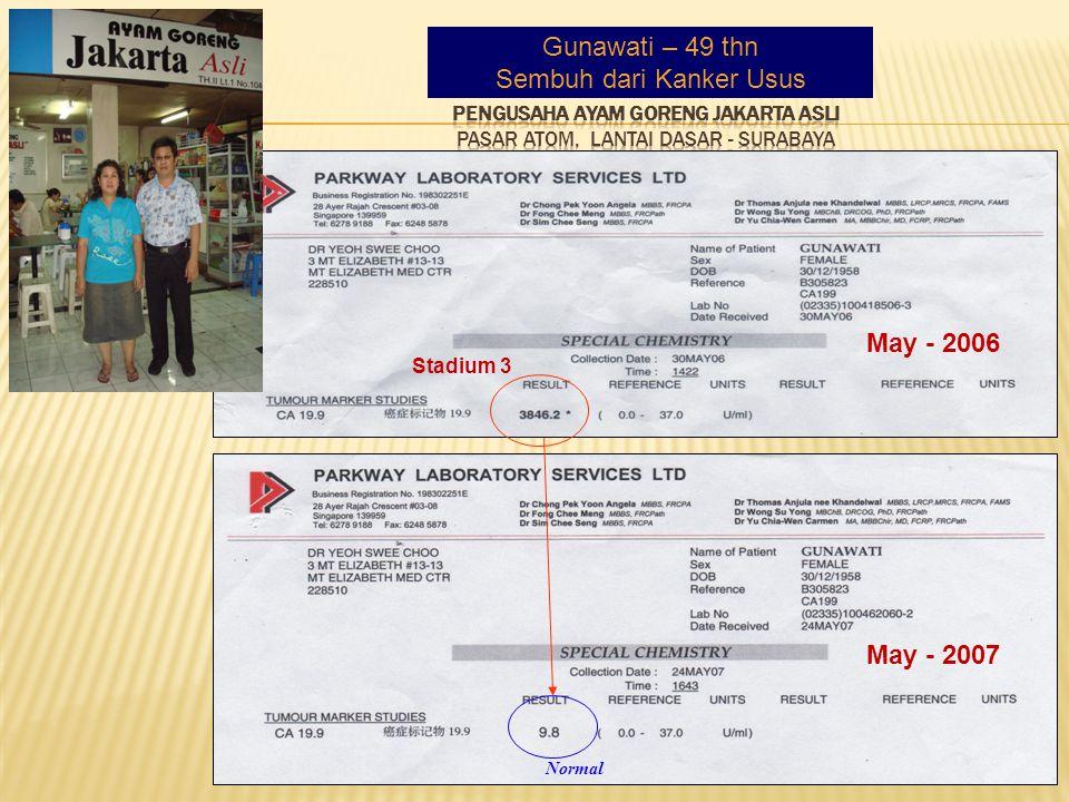 Gunawati – 49 thn Sembuh dari Kanker Usus Normal Stadium 3 May - 2006 May - 2007