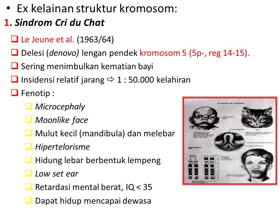 Ex kelainan struktur kromosom:  Le Jeune et al. (1963/64)  Delesi (denovo) lengan pendek kromosom 5 (5p-, reg 14-15).  Sering menimbulkan kematian