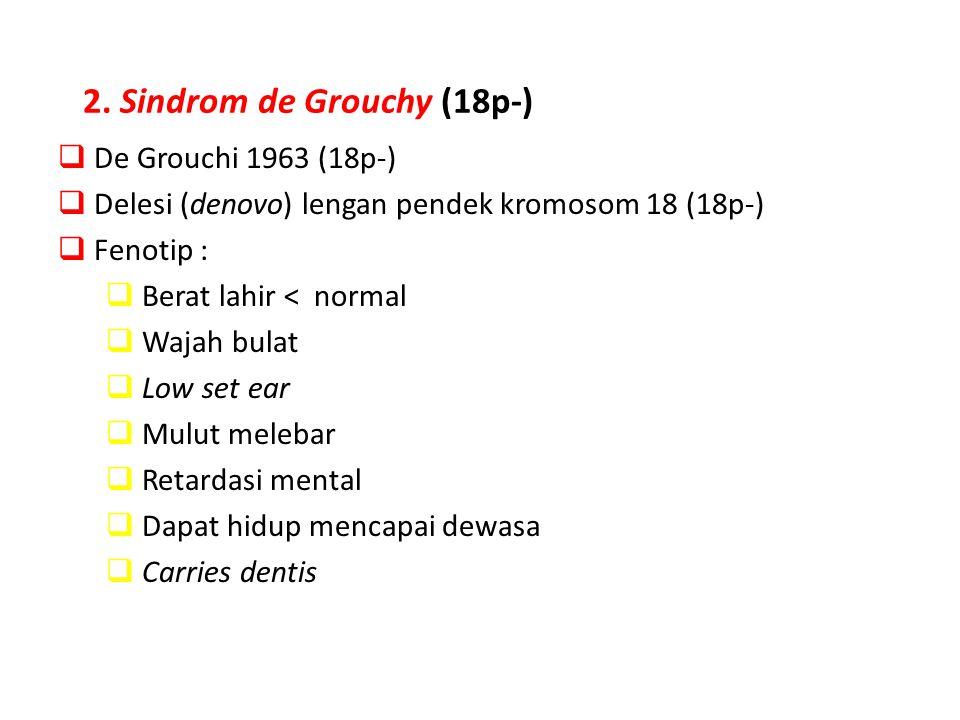 2. Sindrom de Grouchy (18p-)  De Grouchi 1963 (18p-)  Delesi (denovo) lengan pendek kromosom 18 (18p-)  Fenotip :  Berat lahir < normal  Wajah bu