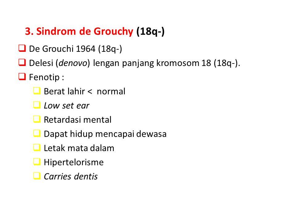 3. Sindrom de Grouchy (18q-)  De Grouchi 1964 (18q-)  Delesi (denovo) lengan panjang kromosom 18 (18q-).  Fenotip :  Berat lahir < normal  Low se
