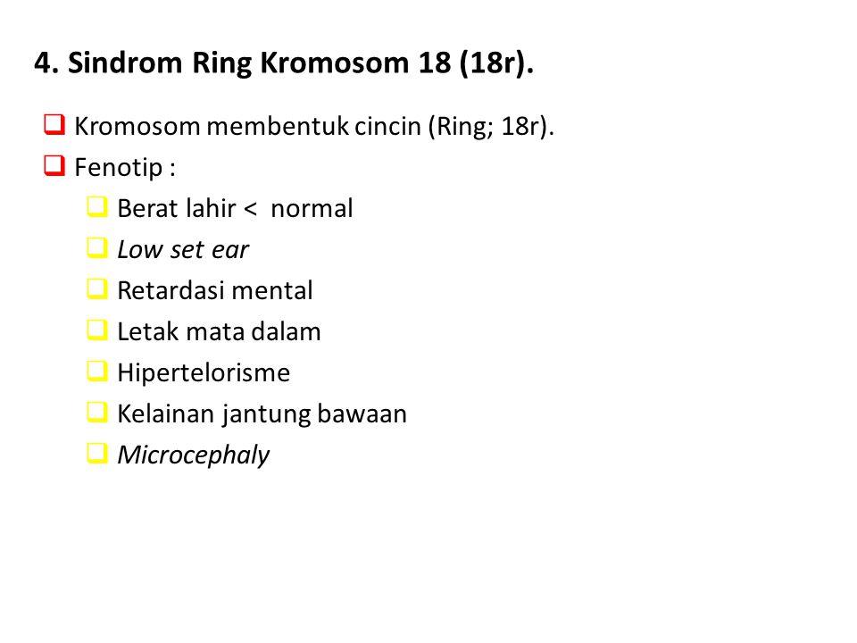 Kromosom membentuk cincin (Ring; 18r).  Fenotip :  Berat lahir < normal  Low set ear  Retardasi mental  Letak mata dalam  Hipertelorisme  Kel