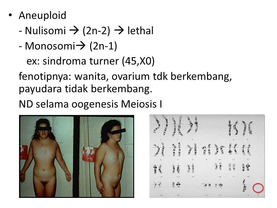 Aneuploid - Nulisomi  (2n-2)  lethal - Monosomi  (2n-1) ex: sindroma turner (45,X0) fenotipnya: wanita, ovarium tdk berkembang, payudara tidak berk
