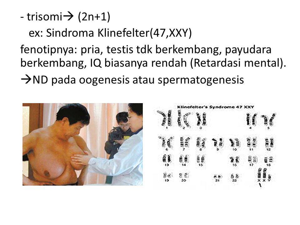- trisomi  (2n+1) ex: Sindroma Klinefelter(47,XXY) fenotipnya: pria, testis tdk berkembang, payudara berkembang, IQ biasanya rendah (Retardasi mental
