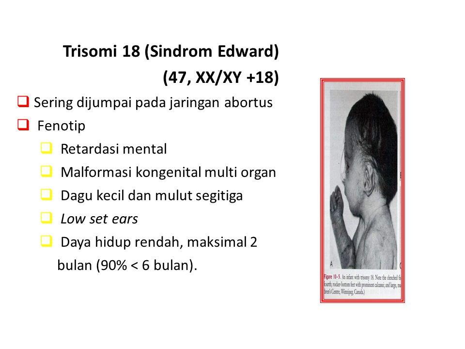 Trisomi 18 (Sindrom Edward) (47, XX/XY +18)  Sering dijumpai pada jaringan abortus  Fenotip  Retardasi mental  Malformasi kongenital multi organ 