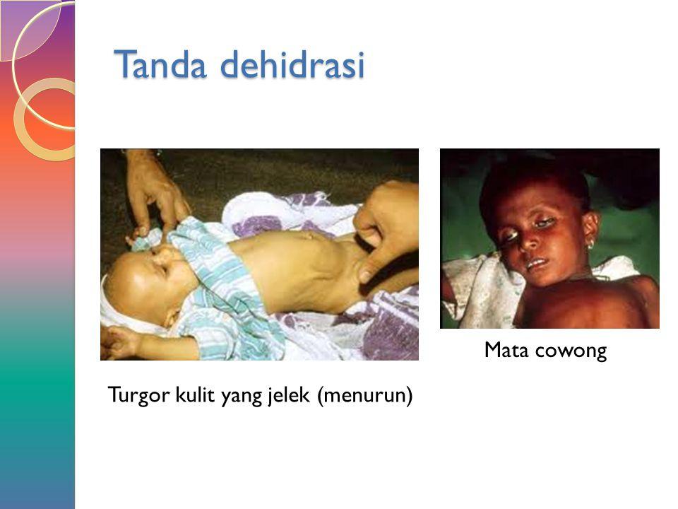Tanda dehidrasi Turgor kulit yang jelek (menurun) Mata cowong