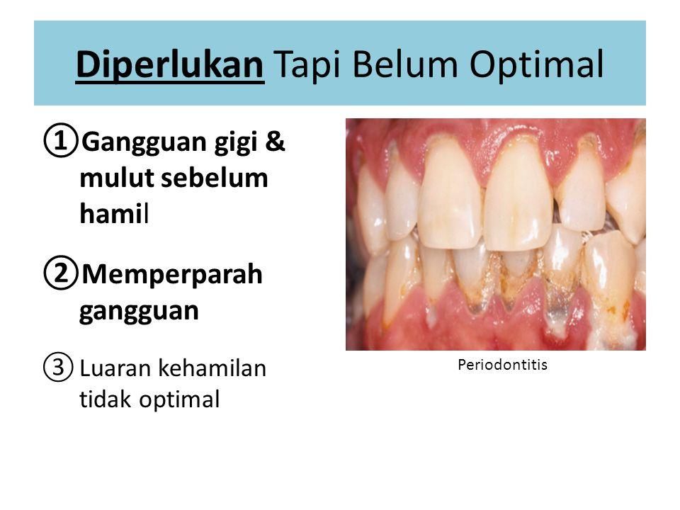 Diperlukan Tapi Belum Optimal ①Gangguan gigi & mulut sebelum hamil ②Memperparah gangguan ③Luaran kehamilan tidak optimal Periodontitis