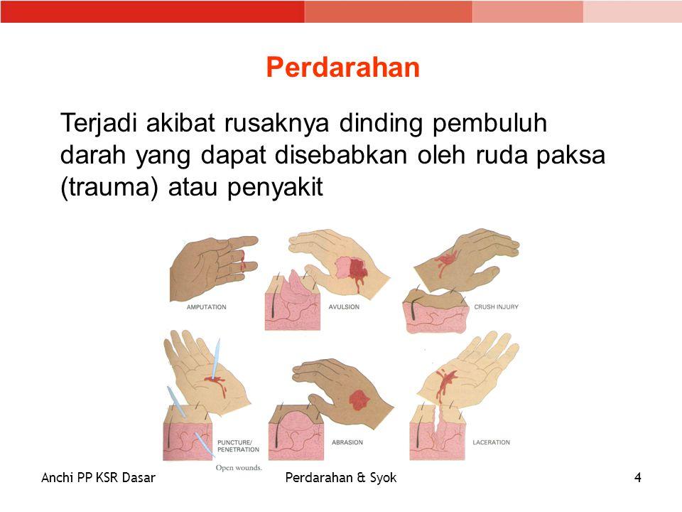 Anchi PP KSR DasarPerdarahan & Syok4 Terjadi akibat rusaknya dinding pembuluh darah yang dapat disebabkan oleh ruda paksa (trauma) atau penyakit Perda