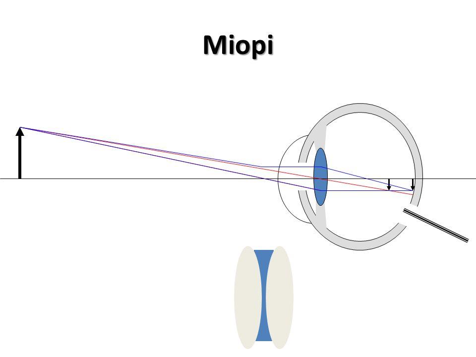 RABUN JAUH (MIOPI) Dapat melihat dengan jelas pada jarak 25 cm tetapi tidak dapat melihat benda-benda jauh dengan jelas. Karena lensa mata tidak dapat