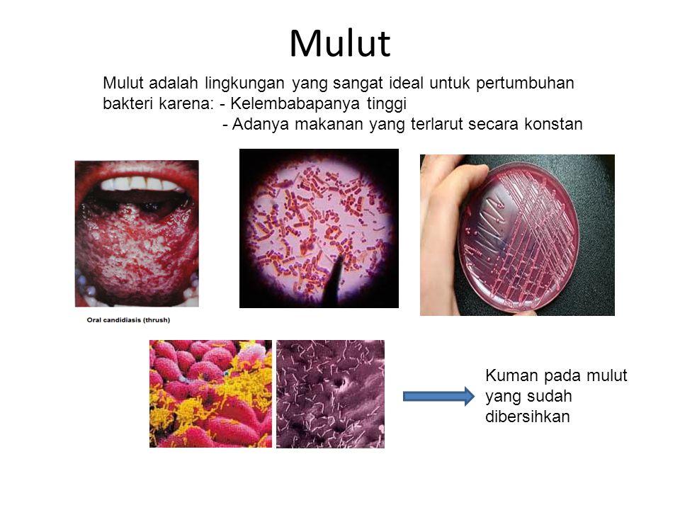 Mulut Mulut adalah lingkungan yang sangat ideal untuk pertumbuhan bakteri karena: - Kelembabapanya tinggi - Adanya makanan yang terlarut secara konsta