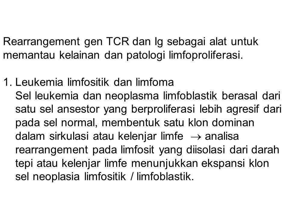 Rearrangement gen TCR dan Ig sebagai alat untuk memantau kelainan dan patologi limfoproliferasi. 1. Leukemia limfositik dan limfoma Sel leukemia dan n