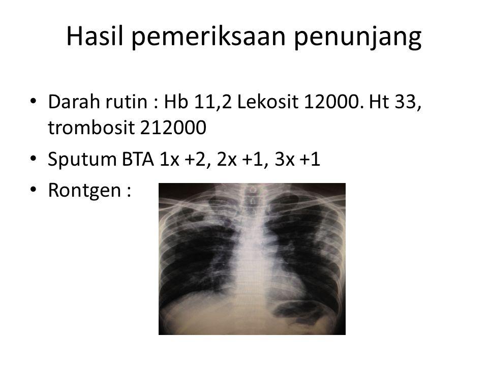 Hasil pemeriksaan penunjang Darah rutin : Hb 11,2 Lekosit 12000. Ht 33, trombosit 212000 Sputum BTA 1x +2, 2x +1, 3x +1 Rontgen :