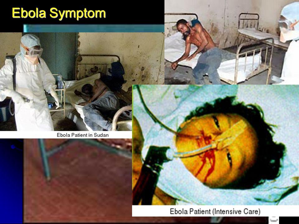 Ebola Symptom